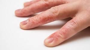 После маникюра чешутся пальцы