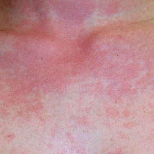 Признаки аллергии на солнце