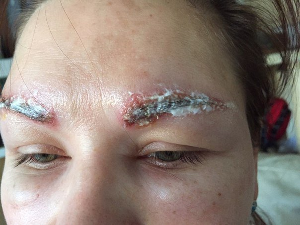Аллергия на бровях от хны