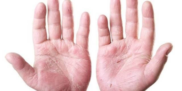 Гормональные мази для кожи