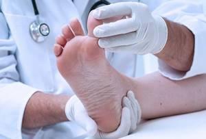 Как вылечить экзему на ногах