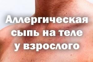 Аллергические высыпания на коже у взрослых лечение