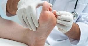 Чем мазать экзему на ногах