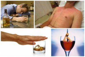 Можно ли пить алкоголь при аллергии