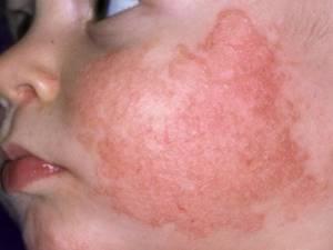 Аллергия на лице у новорожденного чем лечить