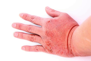 Атопический дерматит на руках