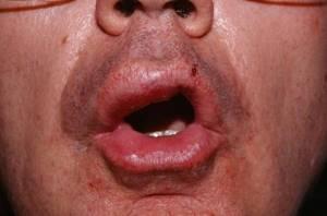 Сыпь по типу крапивницы