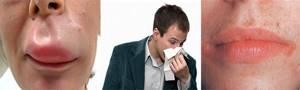 От аллергии цетиризин