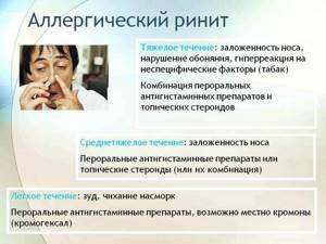 Аллергический ринит признаки