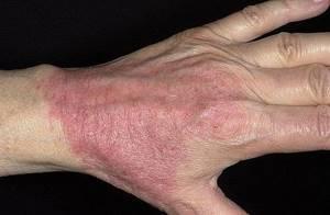 Атопический аллергический дерматит