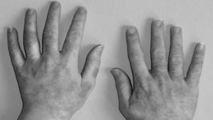 Аллергия на латексные перчатки