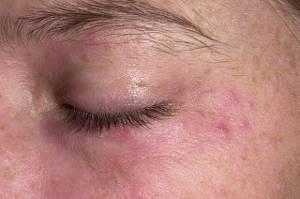 Гормональный дерматит