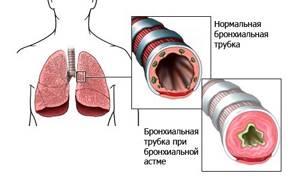 Инвалидность по астме