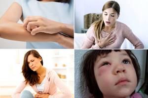 Аллергия на овес