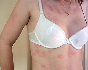 Может ли быть аллергия на парацетамол