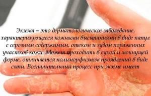 Экзема на руках заразна или нет