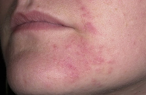 Розовая мазь от дерматита