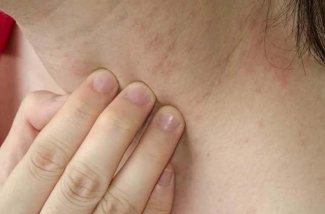Сорбенты от аллергии