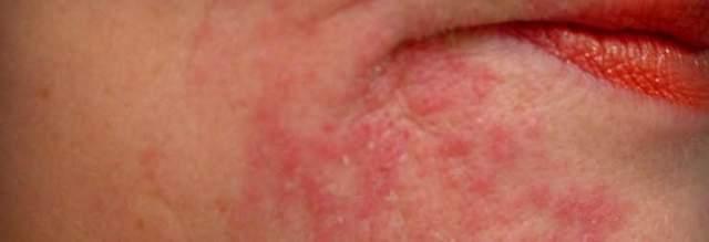 Аллергия на подбородке у женщин