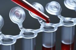 Как правильно сдать кровь на аллергены