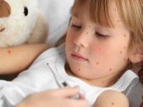 Сыпь на шее у ребенка причины