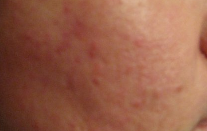 Аллергия после операции