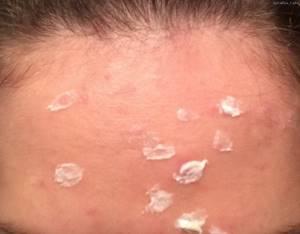 Аллергия на цинковую мазь