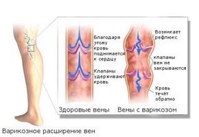 Аллергический васкулит симптомы и лечение