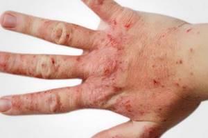 Полисорб при дерматите