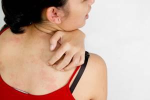 Аллергия от пластыря