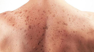 Токсико аллергический дерматит