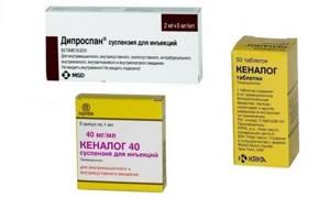 Что лучше преднизолон или дипроспан