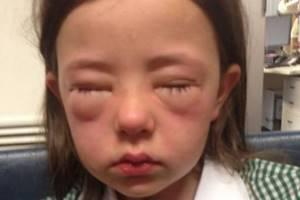 Может ли быть аллергия на йод