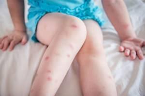 Аллергия на ногах у грудничка