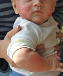Аллергия на коже как лечить