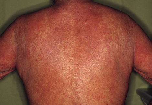 Токсический дерматит лечение