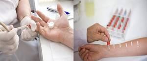 Аллергия в виде бляшек