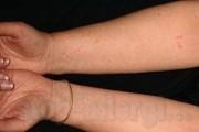 Аллергия похожая на укусы