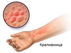 Уголь от аллергии