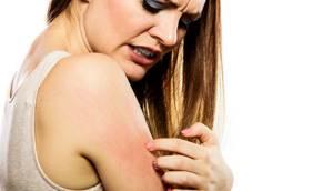 Аллергия на собственный пот