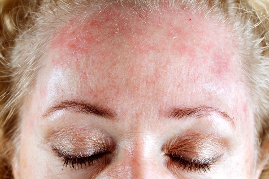 Что пить при аллергии на коже