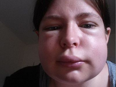 Отек лица при аллергии