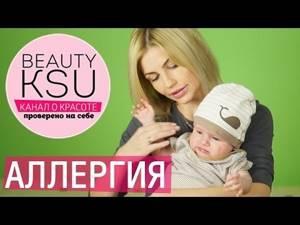 Аллергия у новорожденного
