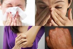 Аллергия на морскую свинку симптомы