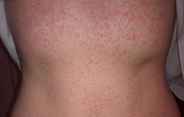 Аллергия на порошок у детей