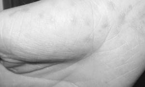 Сыпь на внутренней стороне ладони