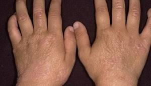 Аллергический дерматит на пальцах рук