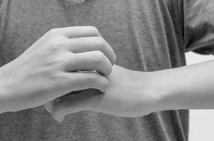 Аллергическая реакция на укус комара