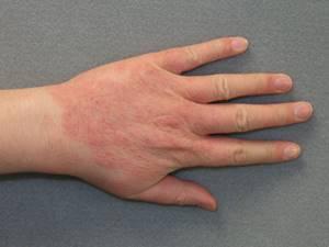 Чем снять зуд от аллергии