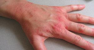 Хроническая экзема на руках